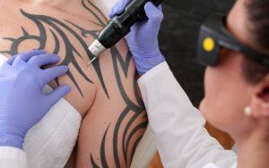Dočasné tetování – skutečnost nebo jen mýtus?
