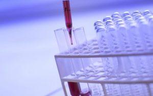 Opravdu byl nalezen lék na HIV?